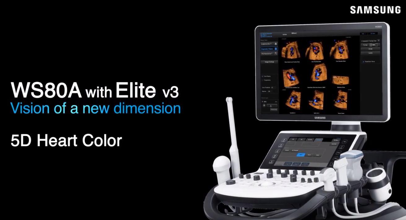Samsung   5D Heart Color ajuda a detectar anomalias cardíacas no feto